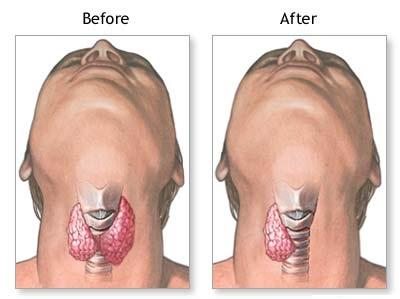 Przed i po operacji